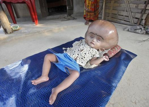 16-month-old Runa Begum, who suffers from Hydrocephalus, a medical condition that causes abnormal accumulation of fluid in cavities of the brain, rests inside her house at Jirania Khola village in Tripura April 12, 2013. Fatima, mother of Begum, says her daughter has been suffering since she was born and the doctors in the region are unable to improve the condition of her child. Begum's father Abdul Rehman, who works in a brick factory, says that they are unable to treat their daughter due to their financial problems. REUTERS/Jayanta Dey