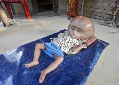 Meet baby Runa Begum