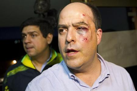 Venezuelan opposition lawmaker Julio Borges of the Primero Justicia party arrives at a news conference with a bruised and bloodied face after a fight broke out at a session of the National Assembly in Caracas April 30, 2013. REUTERS/Carlos Garcia Rawlins