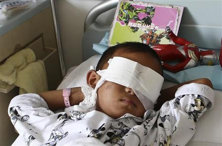 A six-year-old boy, whose eyes were gouged out, lies on a hospital bed in Taiyuan, Shanxi province, August 27, 2013. REUTERS/Stringer