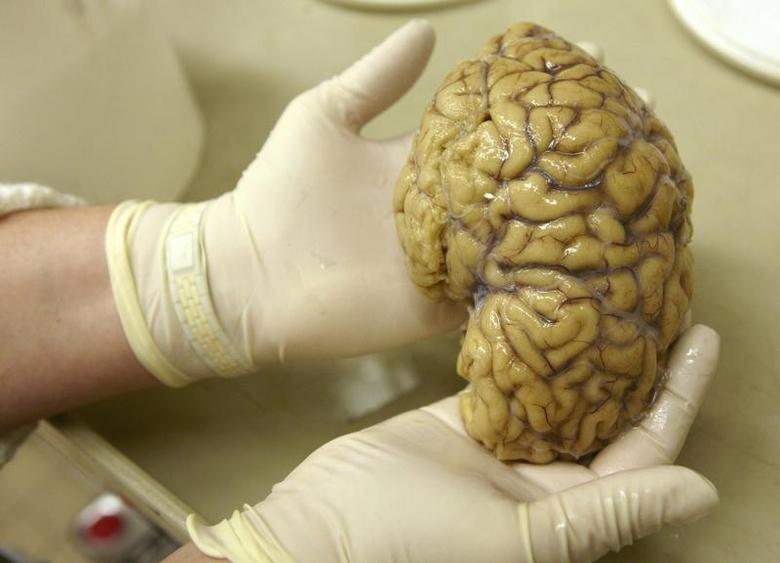 A laboratory assistant holds one hemisphere of a healthy brain in the Morphological unit of psychopathology in the Neuropsychiatry division of the Belle Idee University Hospital in Chene-Bourg near Geneva in a March 14, 2011 file photo. REUTERS/Denis Balibouse/files