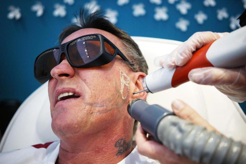 Removing a tattoo