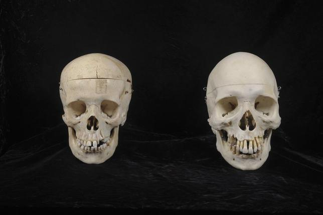 Two human skulls prepared for clinical use that were donated to a Bellevue, Washington thrift store, are pictured in this undated handout photo courtesy of the King County Medical Examiner. REUTERS/King County Medical Examiner/Handout via Reuters