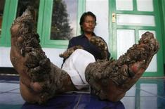 <p>Dede, 36, a man who has gnarled growths sprouting from his hands and feet, sits in front of his house in Tanjung Jaya village on the outskirts of Bandung, the capital of Indonesia's West Java province December 19, 2008. REUTERS/Crack Palinggi</p>