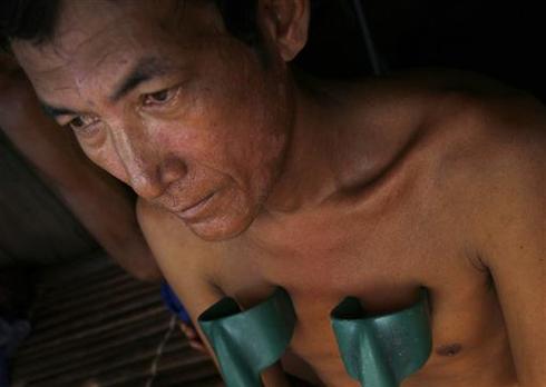 Victims of landmines