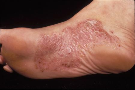 Psoriasis Best Dermatologist Clinic For Skin In
