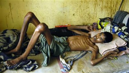 A patient suffering from Tuberculosis rests in a hospital in Agartala, Tripura, March 24, 2009. REUTERS/Jayanta Dey/Files
