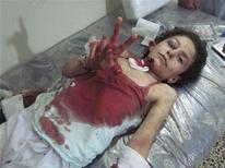Ребенок, раненый обстрелом, жестикулирует на койке в импровизированном госпитале в предместье Хомса 18 июля 2012. Сирийские правительственные войска и преданные президенту Башару Асаду отряды добровольцев совершили военные преступления и преступления против человечности, включая убийства и пытки, объявили в среду эксперты ООН, обвинив в том же и повстанцев. REUTERS/Shaam News Network/Handout