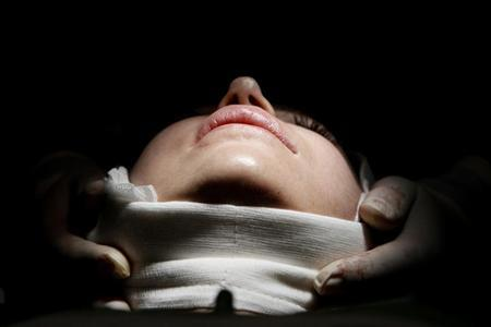 A woman lies on an operating table during a facelift surgery at a private plastic surgery clinic in Budapest, March 1, 2012 REUTERS/Bernadett Szabo