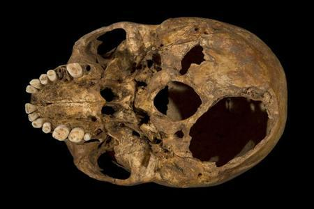 The base of Richard III's skull, which has had a section sliced off (bottom right), is seen in this photograph provided by the University of Leicester and received in London on February 4, 2013. REUTERS/University of Leicester/Handout