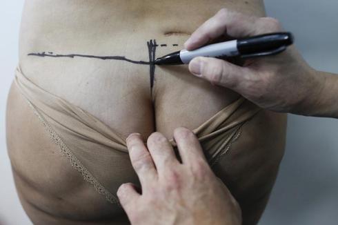 Reversing amateur plastic surgery