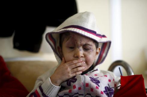 Casualties of Syria