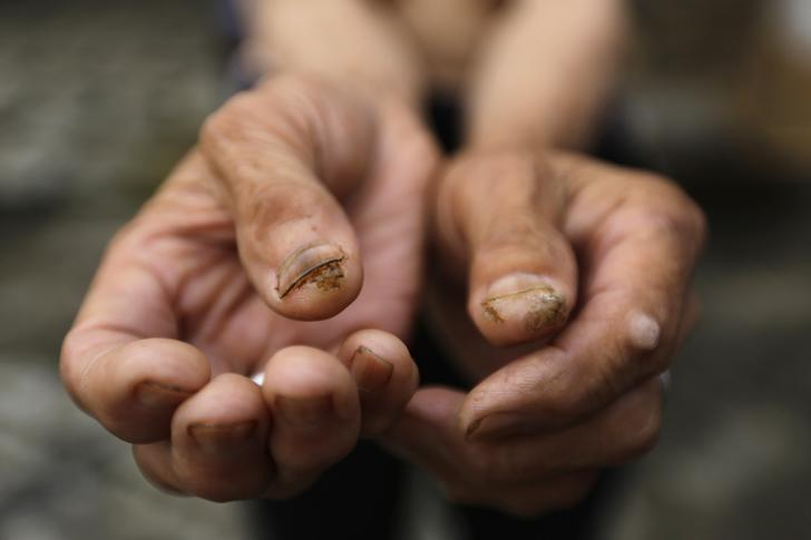 A man who suffers from skin cancer shows tumours on her fingers, at Heshan village, in Shimen county, central China's Hunan Province, June 4, 2014. REUTERS/Jason Lee/Files