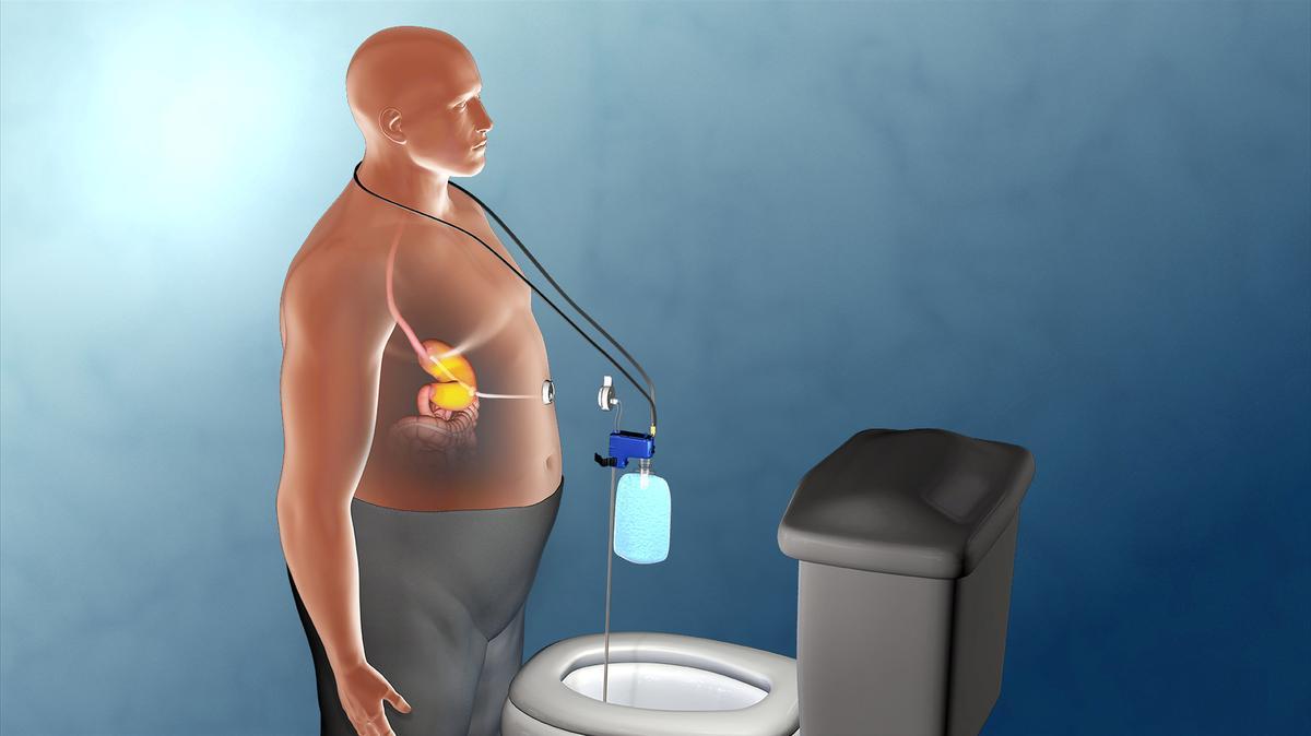 Critics Of Weight Loss Device Urge U S Regulator To Reverse